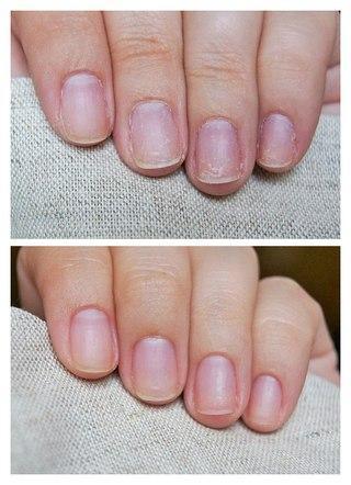 Восстановление и укрепление ногтей
